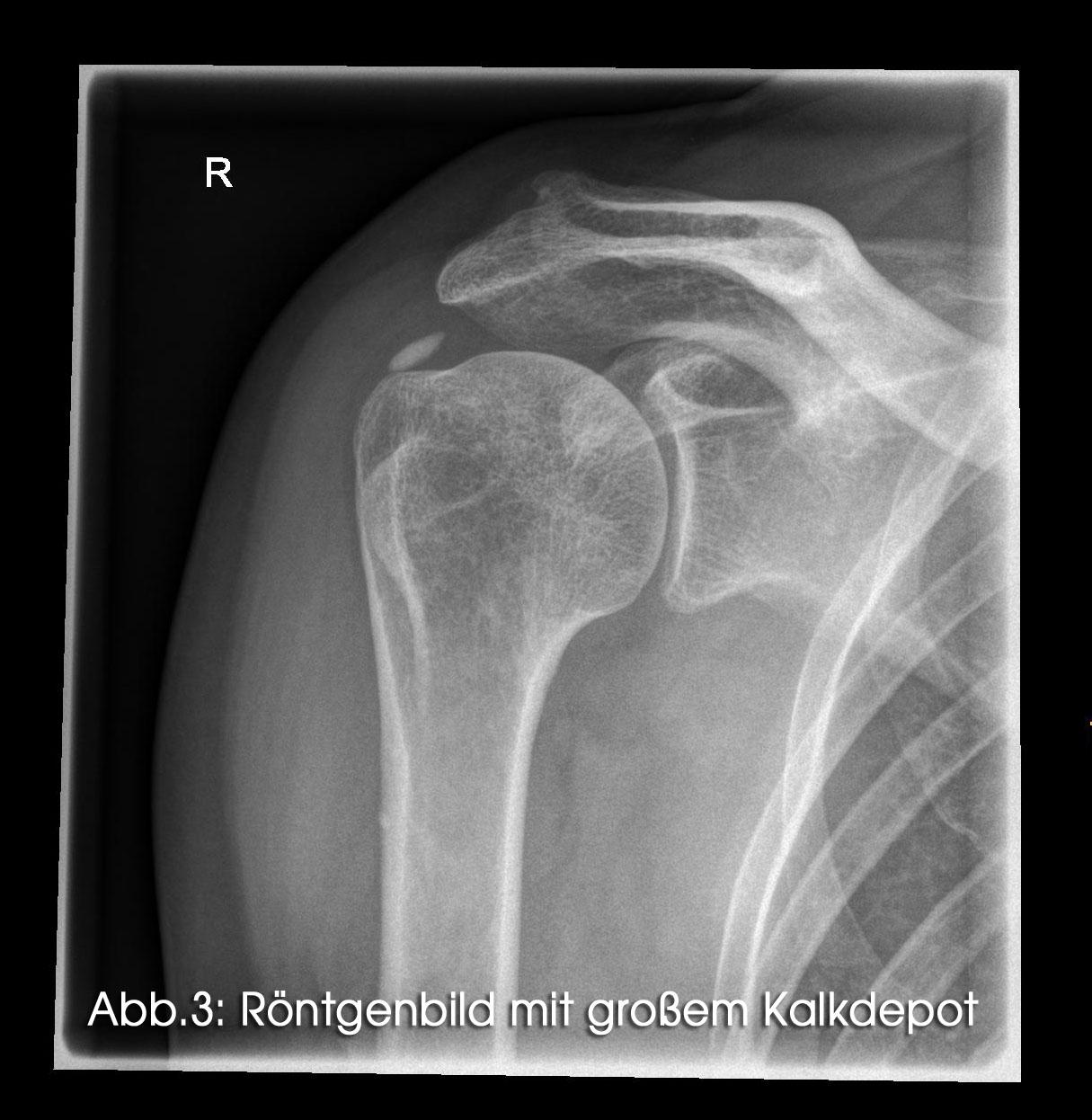 Röntgenbild mit großem Kalkdepot