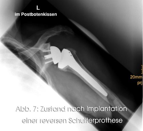 Zustand nach Implantation einer reversen Schulterprothese