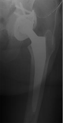 Röntgenbild Zustand nach Pfannenwechsel