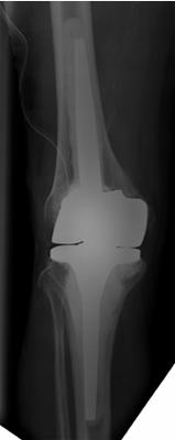 Postoperatives Röntgenbild nach Knieendoprothesenwechsel