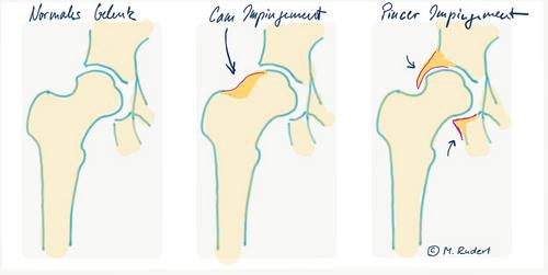 Abbildung mit der Darstellung eines normalen Hüftgelenks, eines mit Cam-Impingement und eines mit Pincer-Impingement (© M. Rudert)